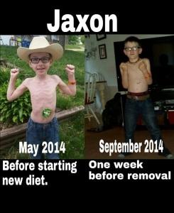 Jaxon Weight