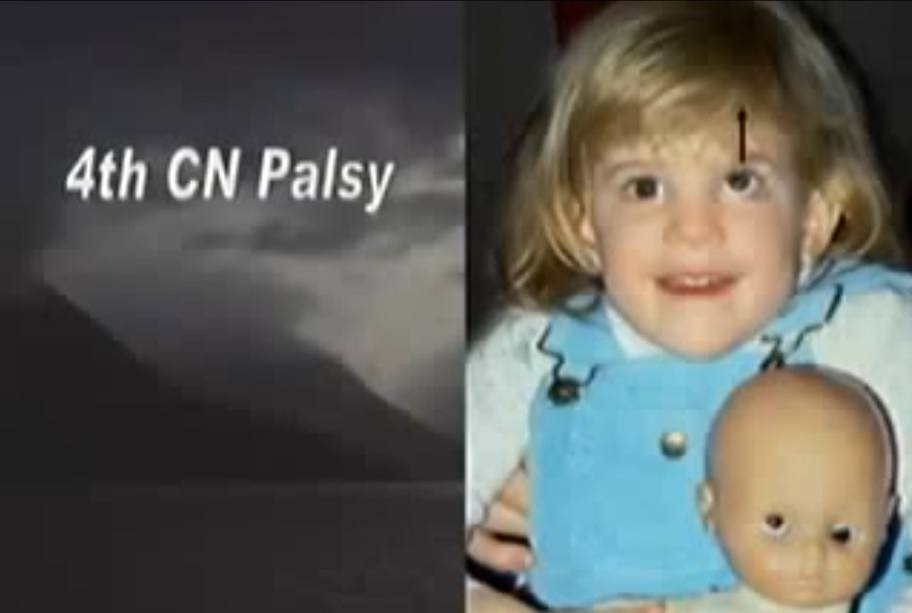 4th-cn-palsy