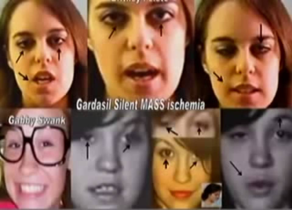 Gardasil-MASS