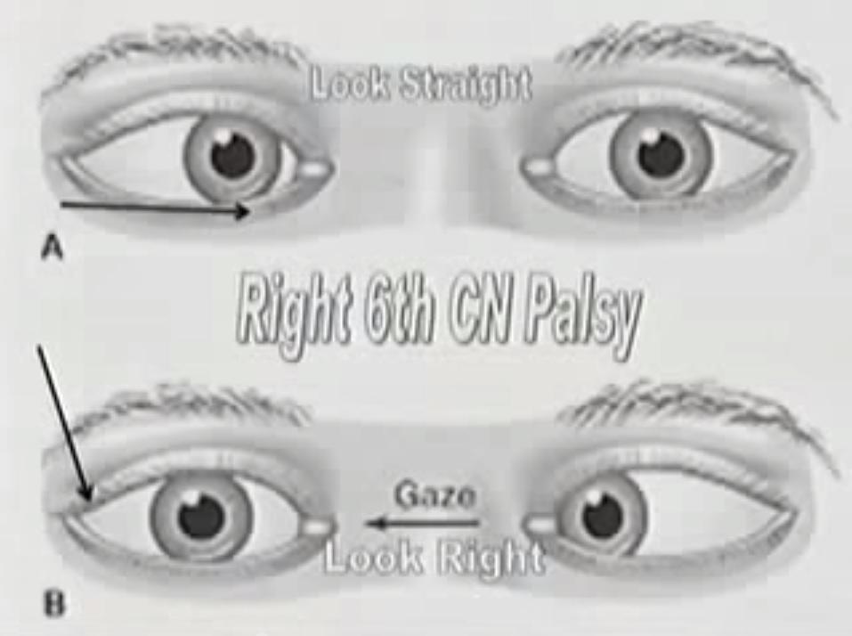 palsy-eye-muscles